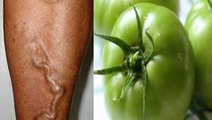 tomate verde é um ótimo um tratamento para varizes