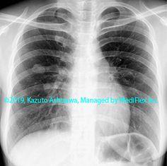 9. 先天性の異常 症例088:肺動静脈瘻 胸部単純X線写真,『コンパクトX線アトラスBasic 胸部単純X線写真アトラス vol.1 肺』