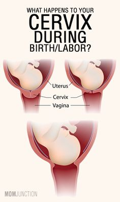 What Happens To Your Cervix During Birth Or Labor?
