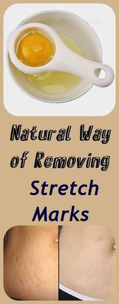 Stretch marks are a form of scarring on the skin which are streaks with either purple, red and pink color. They are caused by tearing of the dermis; and this may reduce over time but will not disap…