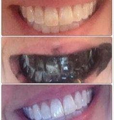 C'est super simple. Écrasez un peu de charbon actif dans un bol, et avec votre brosse à dents, appliquez-le sur vos dents. Vous pouvez trouver de carbone actif dans toutes les pharmacies. Brossez pendant 3 à 4 minutes, puis rincez bien. Vous constaterez une amélioration dès la première application. Vos dents seront plus blanches après une semaine d'utilisation régulière.