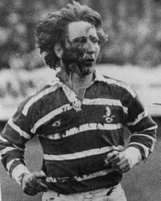 Bridgend full-back JPR Williams runs from the field after having his face torn by New Zealand studs in 1978
