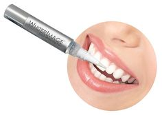 Teeth whitening pens. How it works ,advantages ,disadvantages. - LORECENTRAL