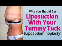 You Should Get Liposuction With Your Tummy Tuck (Lipoabdominoplasty). , , Why You Should Get Liposuction With Your Tummy Tuck (Lipoabdominoplasty). Tummy Tuck Scar Tattoo, Tummy Tuck Scars, Tummy Tuck Before After, Tummy Tuck Cost, Tummy Tuck Surgery, Mommy Makeover, Tummy Tucks, Liposuction, Body Contouring