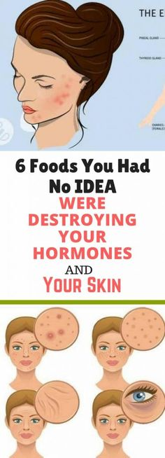 6 Foods You Had No IDEA Were Destroying Your Hormones and Your Skin!!