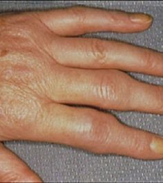 Reactive Arthritis is a type of arthritis that occurs as a result of an infection in the body. When one gets an infection the body reacts by triggering this form of arthritis. Typical infections triggering this form of arthritis are u Signs Of Rheumatoid Arthritis, Reactive Arthritis, Yoga For Arthritis, Juvenile Arthritis, Natural Remedies For Arthritis, Knee Arthritis, Arthritis Relief, Rheumatoid Arthritis Symptoms, Rheumatoid Arthritis