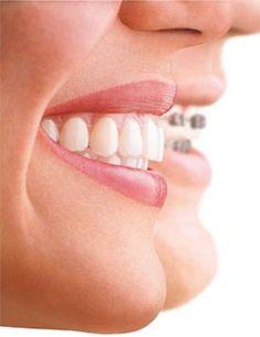 Un sourire avec un appareil dentaire invisible mieux de celui en métallique