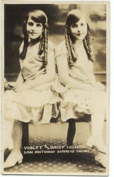 conjoined twins Daisy & Violet Hilton b. 1908