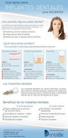 Guía rápida sobre implantes dentales para pacientes