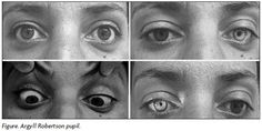 "Argyll Robertson pupils - ""Prostitute's Eye"" because of the association with tertiary syphilis, are bilateral small pupils that constrict when the patient focuses on a near object (they ""accommodate""), but do not constrict when exposed to bright light (they do not ""react"" to light)."