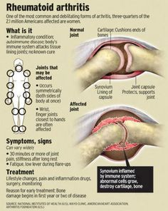 Rheumatoid Arthritis- chronic inflammatory disorder with an insidiuous onselt.  Usually arises between the ages of 30 and 50.