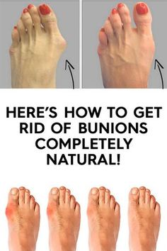 Here's how to get rid of bunions completely natural! - Page 5 of 5 - Viral Health Bunion Remedies, Gout Remedies, Health Remedies, Natural Remedies, Herbal Remedies, Vicks Vaporub, Bunion Exercises, Get Rid Of Bunions, Stay Fit