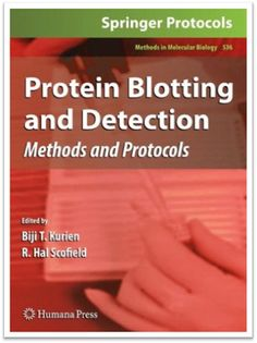 Methods in Molecular Biology Vol.536 - Protein Blotting and Detection Methods and Protocols | Sách Việt Nam