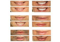 Micropigmentación en labios - El Blog - Mario Gisbert
