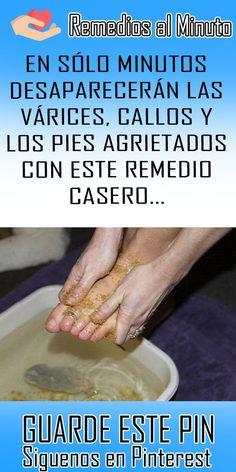 EN SÓLO MINUTOS DESAPARECERÁN LAS VÁRICES, CALLOS Y LOS PIES AGRIETADOS CON ESTE REMEDIO CASERO… #callos #remedio #casero #varices
