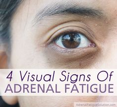 Do you have dark circles under your eyes? Vertical lines in your fingertips? Hairloss or adult acne? All of these can be signs of Adrenal Fatigue.