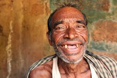 Credit: Sean Hawkey; Lymphatic filariasis patient in India. This picture makes me smile :)