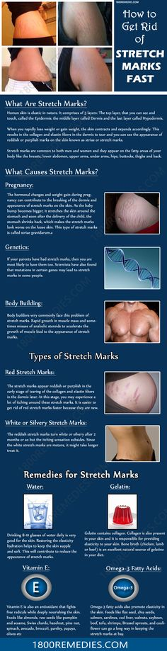 Try these remedies to get rid of stretch marks and let's know about the most helpful remedy to remove the stretch marks fast.