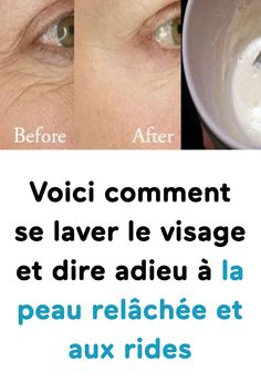 Voici comment se laver le visage et dire adieu à la peau relâchée et aux rides Diet Plan App, How To Get Rid, How To Remove, Hair Scrub, Brown Spots On Skin, Prevent Hair Loss, Belleza Natural, Cellulite, Good Skin