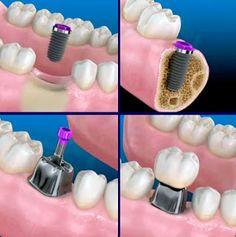 Implantes dentales en la ciudad de Nueva York : La cirugía de implantes dentales