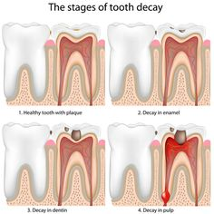 Teeth diagram showing the medical description of all surface sides the stages of tooth decay ccuart Gallery
