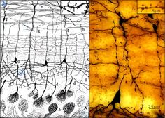 Golgi stained mitral cells-Olfactory bulb: