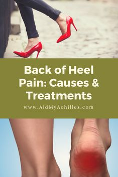 Pain in the back of heel. Most posterior heel pain happens due to overuse, poor… – Top Of The World Leg Pain, Foot Pain, Back Pain, Acupressure, Acupuncture, Sore Heels, Achilles Pain, Sciatica Pain, Pain Relief