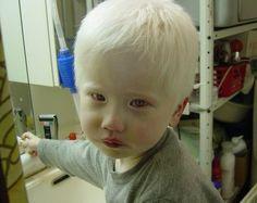 Beautiful albino Asian boy