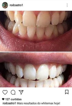 WhiteMax - Clareador Dental 100% Natural — White Max