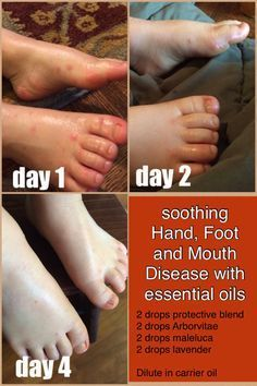 Hand Foot And Mouth Disease And How To Treat With Essential Oils