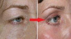 Sagging Skin Remedies Natural Remedy For Drooping Eyelids, Sagging Eyelids Or Hooded Eyes - Drooping Eyelids, Droopy Eyes, Saggy Eyelids, Sagging Skin, Natural Skin Tightening, Skin Tightening Cream, Hooded Eyelids, Hooded Eye Makeup, Face Makeup