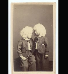 Albino Twins: In the 1860s, a photographer named Charles Eisenmann photographed thousands of circus freaks.