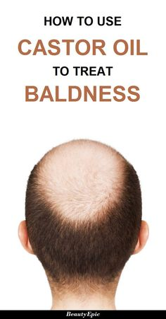 How to Treat Baldness with Castor Oil