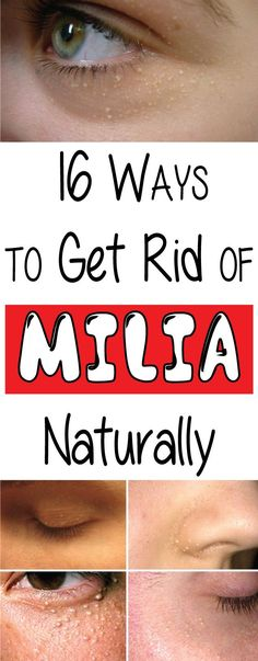 The skin is the most sensitive part of a human body. In this article, we will discuss the ways of how to get rid of milia on the face and under eyes , which
