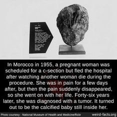 In Morocco in a pregnant woman was scheduled for a c-section but fled the hospital after watching another woman die during the procedure. She was in pain for a few days after, but then the pain suddenly disappeared, so she went on with her. Creepy But True, Scary Creepy Stories, Creepy Facts, Wtf Fun Facts, True Facts, Funny Facts, Uber Facts, Creepy Stuff, Random Facts