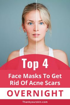 Here are four overnight acne scar removal masks. They can assist you in achieving the clear skin you never possibly imagined. #overnight acne remedies #acne scars remedies Scar Remedies, Acne Face Mask, Overnight Mask, How To Get Rid Of Acne, Acne Scars, Pimples, Clear Skin, Masks, Face Masks