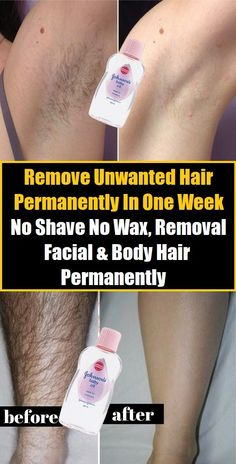 Remove Unwanted Hair Permanently In One Week, No Shave No Wax, Removal Facial & Body Hair Permanently - PowerfulRemedy Today I will share an amazing unwanted hair removal treatment with which you can remove facial and body hair permanently. Beauty Care, Beauty Skin, Beauty Hacks, Beauty Ideas, Beauty Tips, Face Beauty, Beauty Secrets, Beauty Makeup, Electrolysis Hair Removal