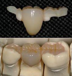 restoration dental - Поиск в Google