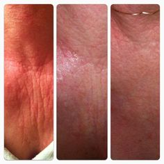 More Real Results - 12 days with NeriumAD!