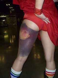 Loretta Synn of TXRG - Biggest Bruise in Derby EVER!!!! <3