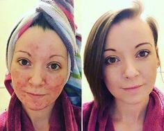 Younique wake up make up, using touch minerals perfecting concealer and liquid foundation