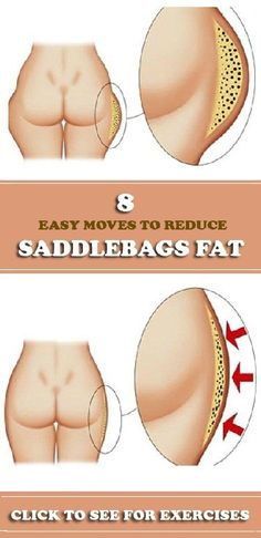 Saddlebags are defined as excess fat around the hips and thighs. It's hard to describe saddlebags, but the easiest way to do it is.Look at your hips from the back. Note the area below the hips and right under the butt cheeks. This is the area where saddlebags will be found. If the skin or …