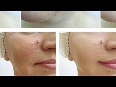 Masca care întinerește fata pentru persoane după 50de ani chiar și 60,65,80.Iti lasă tenul frumos - YouTube Youtube, Plant, Youtubers, Youtube Movies