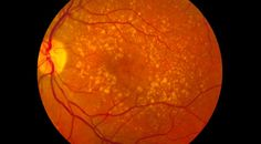 Thyroid and Intermediate age-related macular degeneration