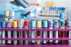 Alle Blutwerte >> Übersicht aller Referenzwerte einer Blutuntersuchung einfach erklärt >> Tabelle & Beschreibung aller Labor- und Blutwerte: