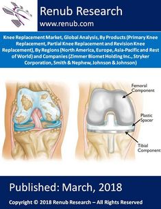 """Knee Replacement Market Globally is anticipated to exceed US$ 13 Billion, by the year 2024. Renub Research report titled """"Knee Replacement Market, Global Analysis, By Products (Primary Knee Replacement, Partial Knee Replacement and Revision Knee Replacement), By Regions (North America, Europe, Asia-Pacific and Rest of World) and Companies (Zimmer Biomet Holding Inc., Stryker Corporation, Smith & Nephew, Johnson & Johnson)"""" provides a complete analysis of Global Knee Replacement Market."""