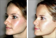 How nose job surgery should be before and after - Plastic Surgery Before and After