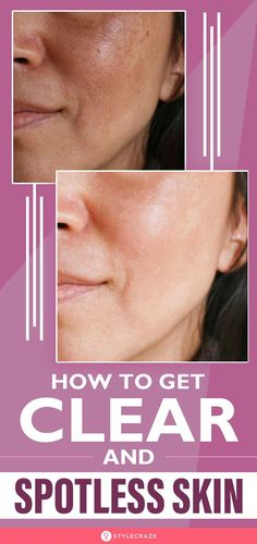 Beauty Tips For Glowing Skin, Health And Beauty Tips, Beauty Skin, Face Care Routine, Beauty Hacks Skincare, Healthy Skin Tips, Skin Care Remedies, Face Skin Care, Facial Care