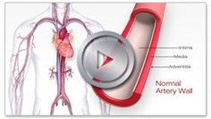 What is Cardiac Rehabilitation? Article  from the American Heart Association