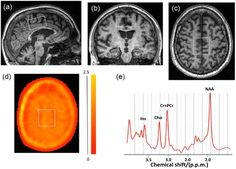 An alternative MRI - MRS and PET imaging in MS  Mult Scler. 2016 Nov 30. pii: 1352458516681504. [Epub ahead of print] Translocator positron-emission tomography and magnetic resonance spectroscopic imaging of brain glial cell activation in multiple sclerosis.  Datta G Violante IR Scott G Zimmerman K Santos-Ribeiro A Rabiner EA Gunn RN Malik O Ciccarelli O Nicholas R Matthews PM. Abstract BACKGROUND: Multiple sclerosis (MS) is characterised by a diffuse inflammatory response mediated by…